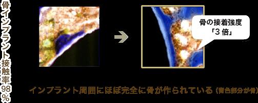 インプラント周囲にほぼ完全に骨が作られている(青色部分が骨)