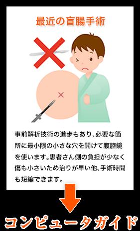 最近の盲腸手術