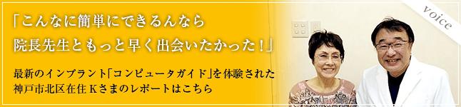 「こんなに簡単にできるんなら院長先生ともっと早く出会いたかった!」最新のインプラント「ノーベルガイド」を体験された神戸市北区在住Kさまのレポートはこちら