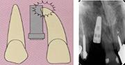 歯の根にドリルやインプラントがあたり、歯根を傷つける可能性の図