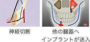 神経切断、他の臓器へのインプラント迷入の図