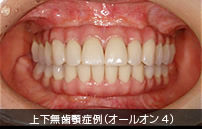 上下無歯顎症例(オールオン4)