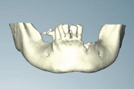下顎のCT画像