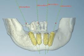 コンピューターシミュレーションしたインプラント治療計画