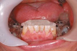口にはめた状態で手術を行う