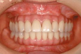 よく噛める固定式の歯が即日で